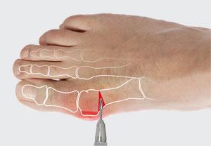 Cirug a percutanea del pie cirug a ortop dica del pie for Operacion de pies